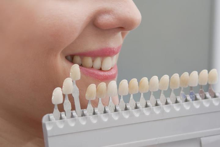 რისი მაუწყებელია კბილის მინანქრის ფერი?